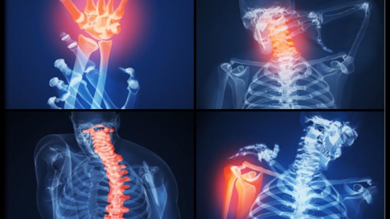 hévíz magyar ízületi kezelés kenőcs a hát hátában lévő osteokondrozisért